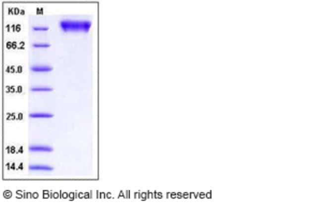 Sino Biological Human MERTK / Mer Protein (His & Fc Tag)  HUMAN MERTK/MER,200UG