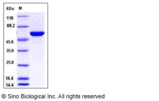 Sino Biological Human MERTK / Mer Protein GST Tag  HUMAN MERTK/MER,50UG