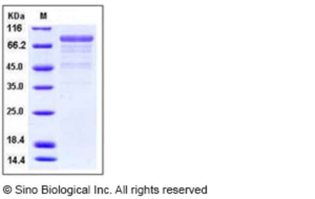 Sino Biological Human Cadherin-12 / CDH12 Protein (His Tag)  HUMAN CADHERIN-12/CDH12,100UG