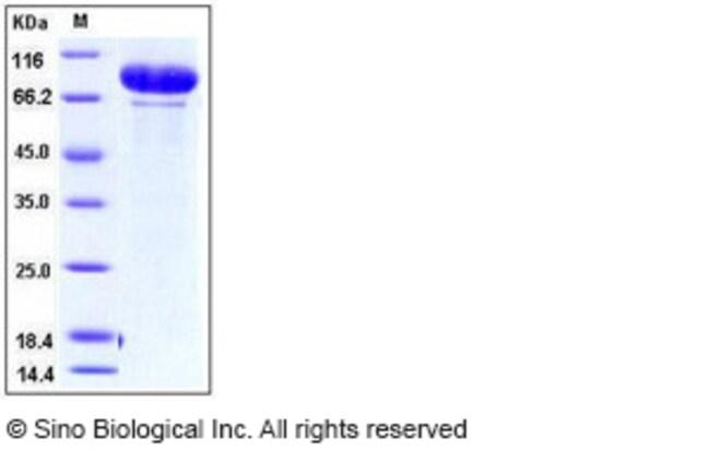 Sino Biological Human MMP-9 / CLG4B Protein  HUMAN MMP-9/CLG4B,20UG