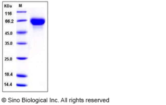 Sino Biological Human GFRA2 / GFRα2 / GDNFRB Protein (His Tag)  HUMAN GFRA2/GFR?2/GDNFRB,100UG