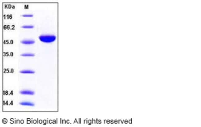 Sino Biological Human IFNα4 / IFNa4 / Interferon alpha-4 Protein (Fc Tag)
