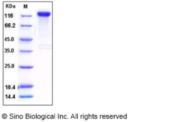 Sino Biological Human SLITRK1 Protein (His & Fc Tag)  HUMAN SLITRK1,50UG