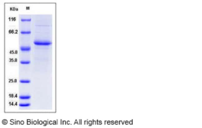 Sino Biological Human Interferon alpha 7 / IFNA7 Protein (Fc Tag)  HUMAN