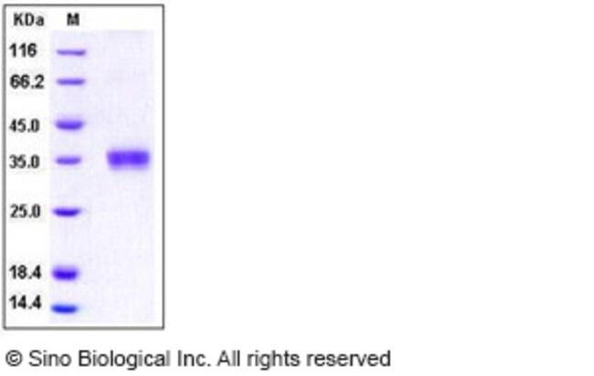 Sino Biological Human Granzyme B / GZMB Protein (His Tag)  HUMAN GRANZYME