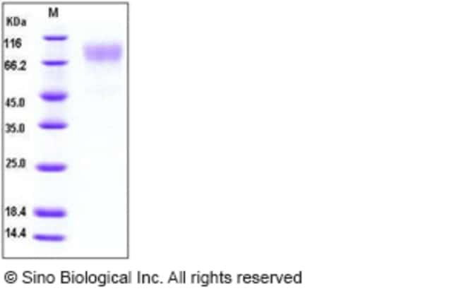 Sino Biological Human ICAM-1 / CD54 Protein  HUMAN ICAM-1/CD54,100UG