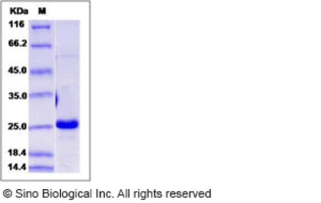 Sino Biological Human Interferon alpha-B / IFNA8 Protein  HUMAN IFNA8,50UG