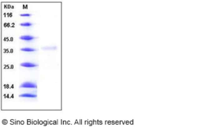 Sino Biological Human Granzyme H Protein (His Tag)  HUMAN GRANZYME H,10UG