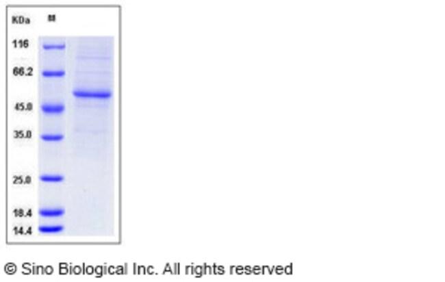 Sino Biological Human Interferon alpha 10 / IFNA10 Protein (Fc Tag)  HUMAN