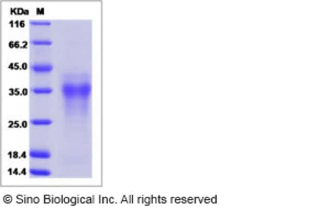 Sino Biological Human Syndecan-2 / SDC2 Protein (His Tag, ECD)  HUMAN SDC2