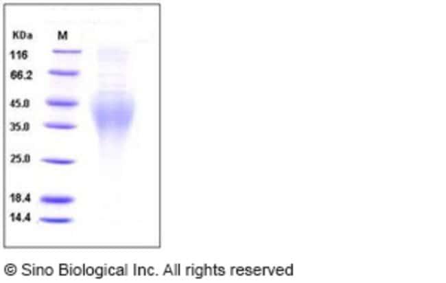 Sino Biological Human IL18BPa Protein (His Tag)  HUMAN IL18BPA,200UG