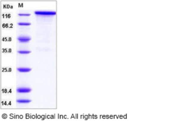 Sino Biological Human / Rhesus HER4 / ErbB4 Protein (Fc Tag)  HUMAN/RHESUS