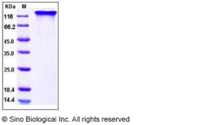 Sino Biological Human HER4 / ErbB4 Protein (His & Fc Tag)  HUMAN ERBB4,50UG