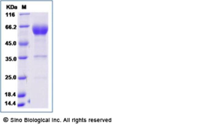 Sino Biological Human PD1 / PDCD1 / CD279 Protein  (Fc Tag)  HUMAN PD1