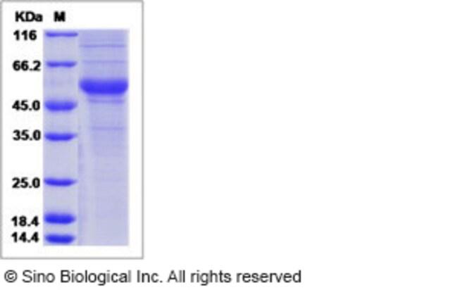 Sino Biological Human Thrombopoietin / THPO Protein (Fc Tag)  HUMAN THROMBOPOIETIN/THPO,20UG