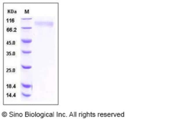Sino Biological Human Thrombopoietin / THPO / TPO Protein (His Tag)  HUMAN