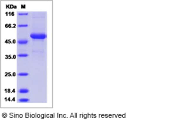 Sino Biological Human TNFSF14 / LIGHT / CD258 Protein (Fc Tag)  HUMAN TNFSF14/LIGHT,100UG