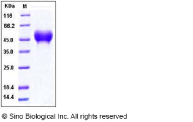 Sino Biological Human CD16a / FCGR3A Protein (176 Val, His Tag)  HUMAN