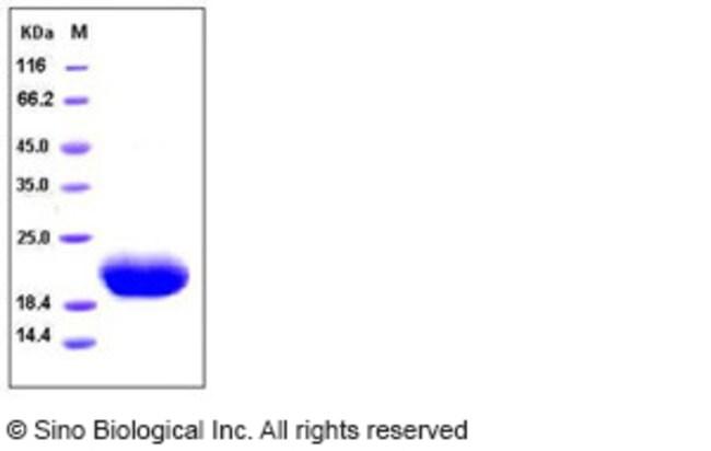 Sino Biological Human IL6 / Interleukin-6 Protein  HUMAN IL-6,100UG