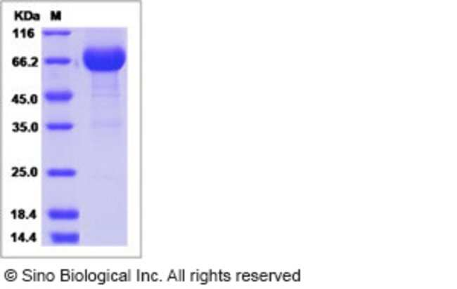 Sino Biological Human IL20RA / IL-20RA Protein (ECD, Fc Tag)  HUMAN IL-20RA
