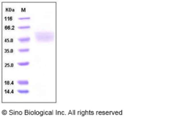 Sino Biological Human KLK-1 / Kallikrein-1 Protein (His Tag)  HUMAN KLK-1/KALLIKREIN-1,20UG