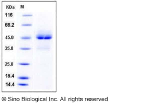 Sino Biological Human TRAIL R1 / CD261 / TNFRSF10A Protein (Fc Tag)  HUMAN