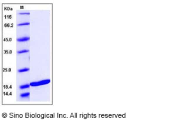 Sino Biological Human TNFSF10 / TRAIL / APO-2L / CD253 Protein  HUMAN TNFSF10/CD253,10UG