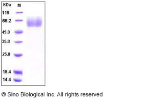 Sino Biological Human MSR1 / SCARA1 / CD204 Protein (His Tag)  HUMAN MSR1/SCARA1/CD204,50UG