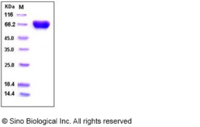 Sino Biological Human TROP2 / TACSTD2 Protein (His & Fc Tag)  HUMAN TROP2/TACSTD2,200UG