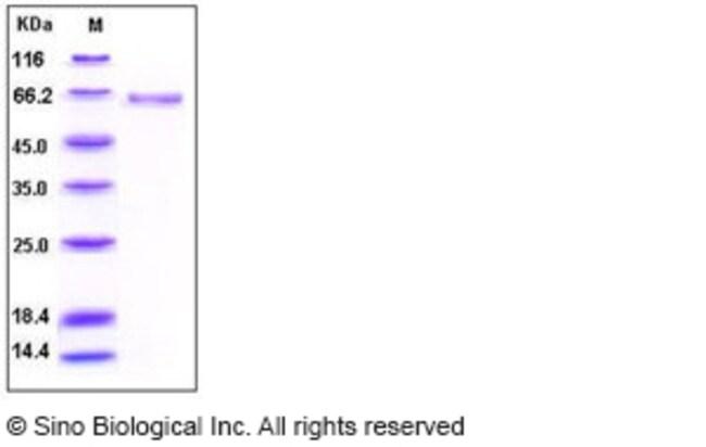 Sino Biological Human Alkaline Phosphatase / ALPL Protein (His Tag)  HUMAN