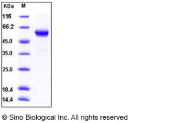 Sino Biological Human BMPRIA / ALK-3 / CD292 Protein (His & Fc Tag)  HUMAN