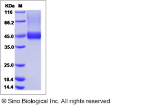 Sino Biological Human Biglycan / BGN Protein (His Tag)  HUMAN BIGLYCAN/BGN,50UG