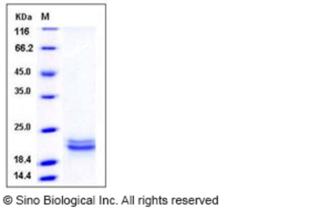 Sino Biological Human SCF / C-kit ligand Protein (aa 1-189, His Tag)  HUMAN