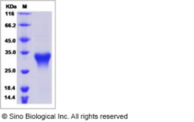 Sino Biological Human Oncostatin M / OSM Protein  HUMAN ONCOSTATIN M/OSM,5UG