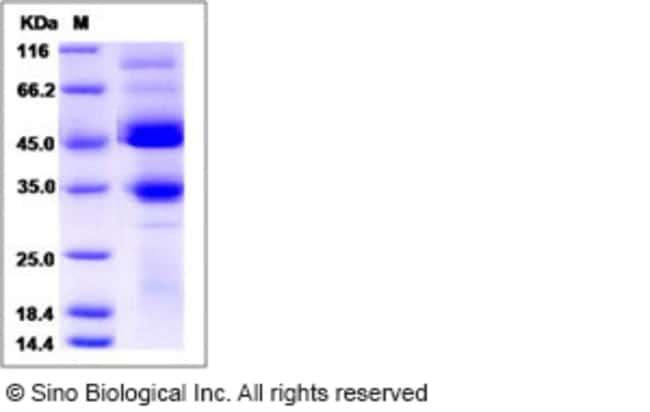Sino Biological Human BMPR1B / ALK-6 Protein (Fc Tag)  HUMAN BMPR1B/ALK-6,200UG