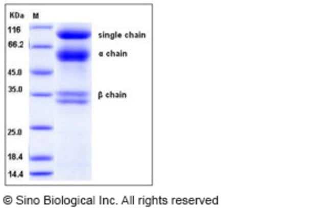 Sino Biological Human HGF / Hepatocyte Growth Factor Protein  HUMAN HGF,5UG