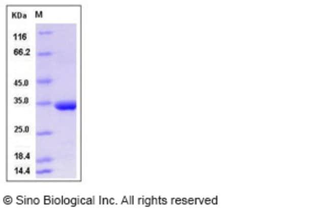 Sino Biological Human MMP-3 Protein  HUMAN MMP-3,100UG