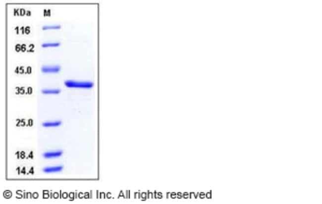 Sino Biological Human Carbonic Anhydrase VIII / CA8 Protein (His Tag)