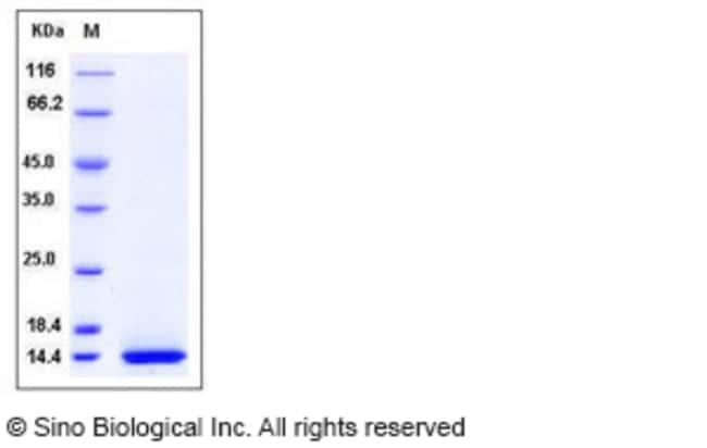 Sino Biological Human CCL11 Protein (His Tag)  HUMAN CCL11,20UG