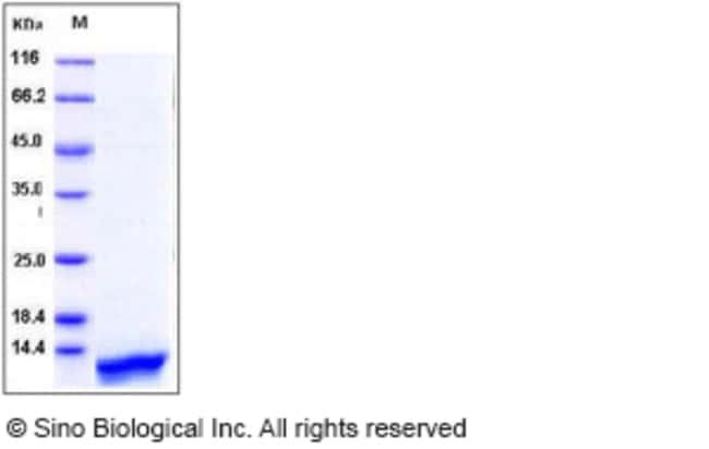 Sino Biological Human CCL14 / HCC-1 / HCC-3 Protein (aa 28-93, His Tag)