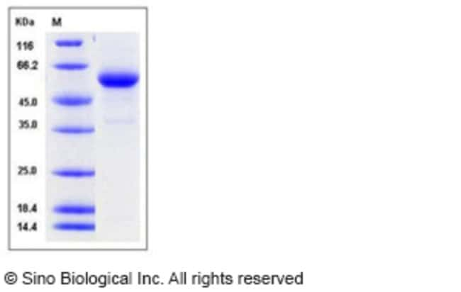 Sino Biological Human Cathepsin C / CTSC / DPPI Protein (His Tag)  HUMAN