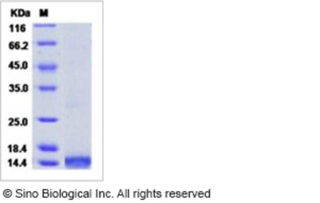 Sino Biological Human CCL16 / HCC-4 / NCC4 Protein (His Tag)  HUMAN CCL16/HCC-4/NCC4,50UG