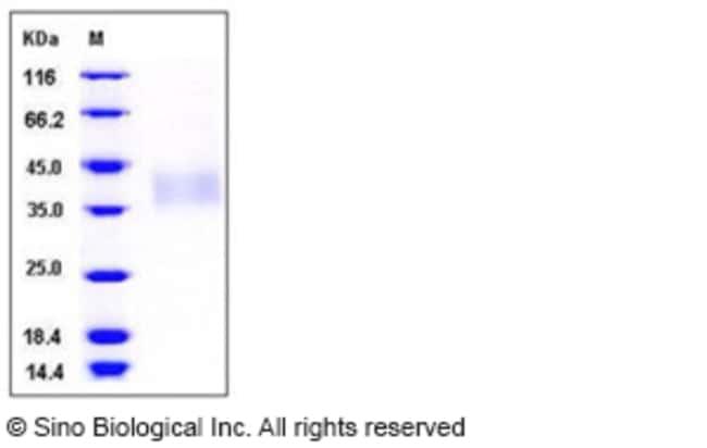 Sino Biological Human TREM1 Protein (His Tag)  HUMAN TREM1,50UG