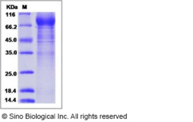 Sino Biological Human IL3RA / CD123 Protein (His & Fc Tag)  HUMAN IL3RA/CD123,50UG