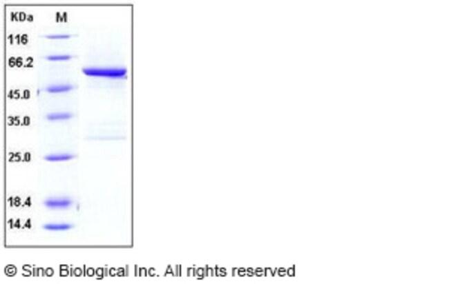 Sino Biological Human SPG21 Protein (GST Tag)  HUMAN SPG21,20UG