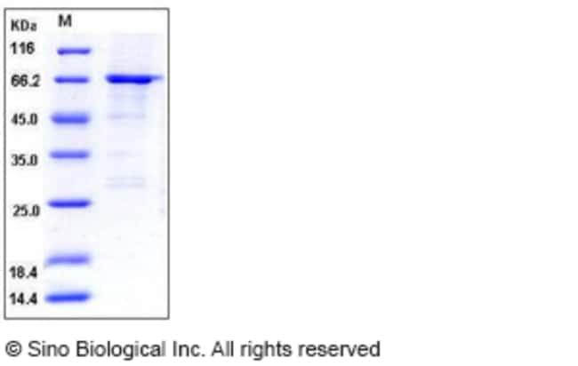 Sino Biological Human ATL1 / SPG3A / Atlastin-1 Protein (GST Tag)  HUMAN