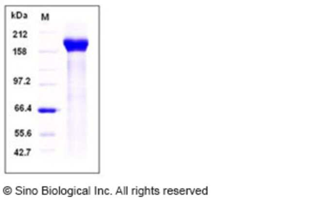 Sino Biological Human PAPPA2 / Pappalysin 2 Protein (His Tag)  HUMAN PAPPA2/PAPPALYSIN