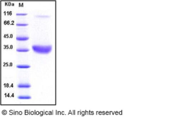 Sino Biological Human ACP5 / TRAP Protein (His Tag)  HUMAN ACP5/TRAP,10UG