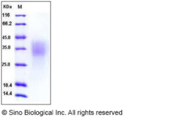 Sino Biological Human BMPR2 / BMPR-II Protein (His Tag)  HUMAN BMPR2/BMPR-II,100UG