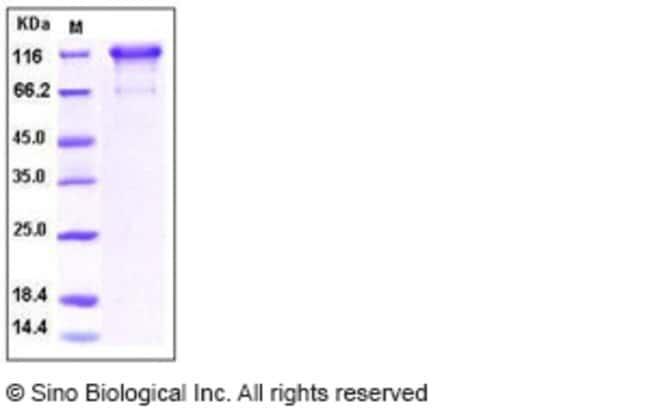 Sino Biological Human PDGFRa / CD140a Protein (Fc Tag)  HUMAN PDGFRA/CD140A,100UG
